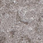4040 Dusty Stone